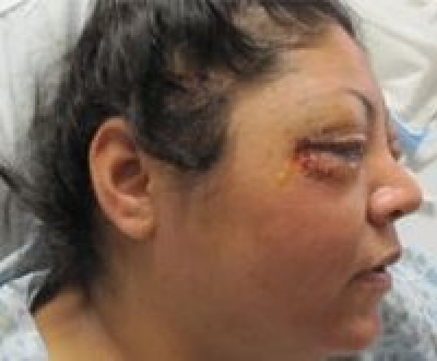 Mis-trial for cop who literally exploded a woman's eyeballs permanently blinding her