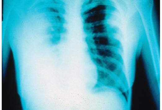 pneumonic plague