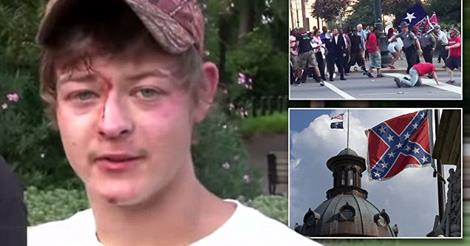 Video: Brawl Gets Bloody At the SC Confederate Flag Memorial