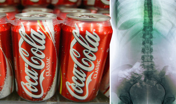 What Happens To Your Body Within The First Hour of Drinking a Coke