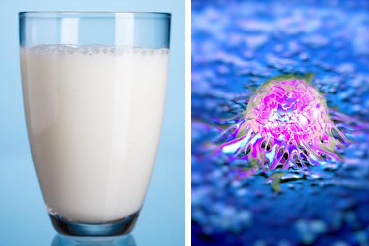 Top Scientist Exposes the Real Dangers of Milk: 'Turns on Cancer' and 'Leaches Calcium from your bones'
