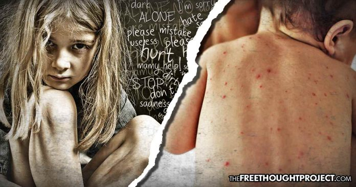 As Media Freaks Over 159 Measles Cases, Thousands of Kids Sold as Sex Slaves Out of Foster Care