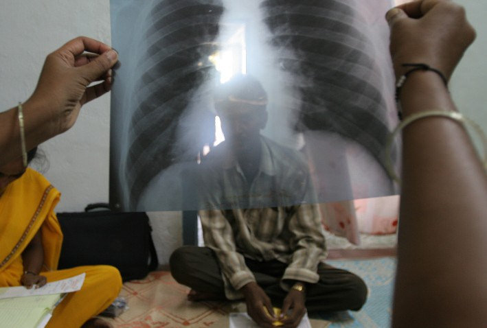 Muslim refugees bringing wave of tuberculosis to Minnesota… CDC silent, media blackout
