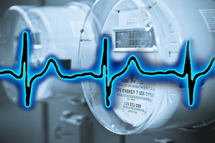 EKG Demonstration Shows How Smart Meters may be Contributing to Heart Trouble
