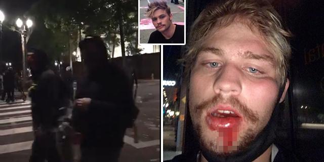 Independent Journalist 'Beaten Bloody by Antifa' in Portland, Media Yawns