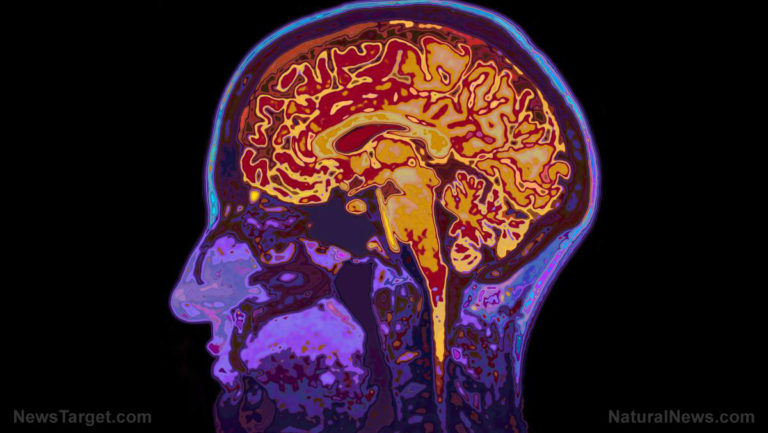 Canadian doctors now investigating mysterious brain condition in some patients